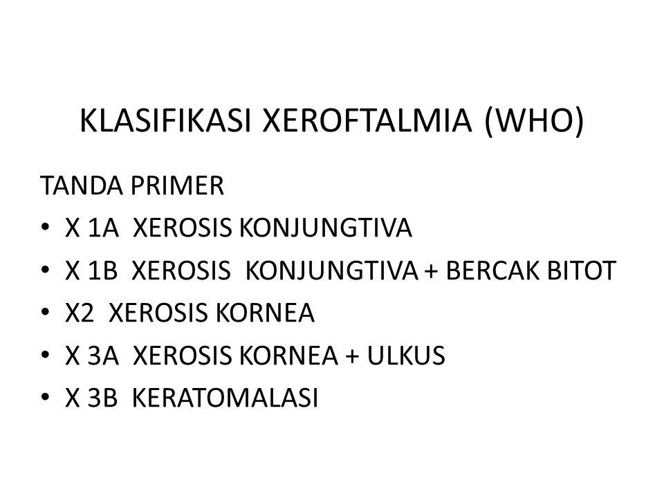 KLASIFIKASI XEROFTALMIA (WHO) TANDA PRIMER X 1A XEROSIS KONJUNGTIVA X 1B XEROSIS KONJUNGTIVA + BERCAK BITOT X2 XEROSIS KORNEA X 3A XEROSIS KORNEA + UL