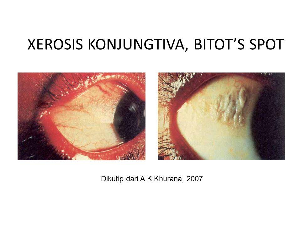 XEROSIS KONJUNGTIVA, BITOT'S SPOT Dikutip dari A K Khurana, 2007