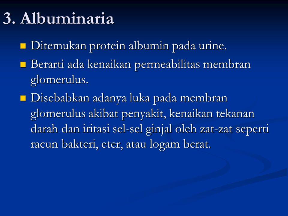 3. Albuminaria Ditemukan protein albumin pada urine. Ditemukan protein albumin pada urine. Berarti ada kenaikan permeabilitas membran glomerulus. Bera