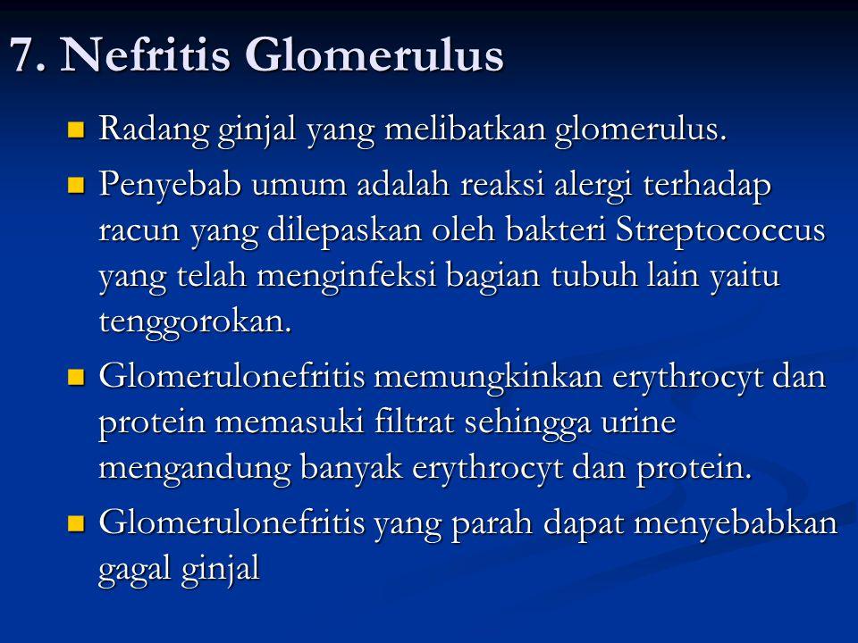7. Nefritis Glomerulus Radang ginjal yang melibatkan glomerulus. Radang ginjal yang melibatkan glomerulus. Penyebab umum adalah reaksi alergi terhadap