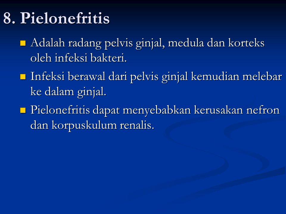8. Pielonefritis Adalah radang pelvis ginjal, medula dan korteks oleh infeksi bakteri. Adalah radang pelvis ginjal, medula dan korteks oleh infeksi ba