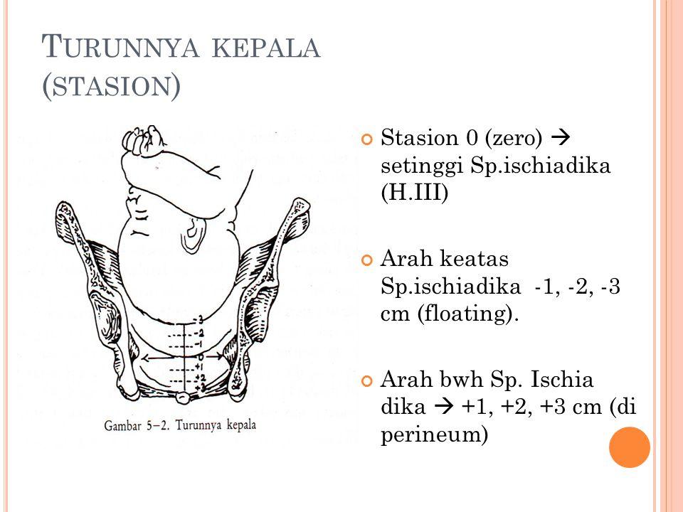 T URUNNYA KEPALA ( STASION ) Stasion 0 (zero)  setinggi Sp.ischiadika (H.III) Arah keatas Sp.ischiadika -1, -2, -3 cm (floating). Arah bwh Sp. Ischia