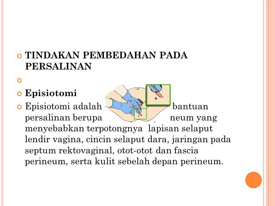 TINDAKAN PEMBEDAHAN PADA PERSALINAN Episiotomi Episiotomi adalah suatu tindakan bantuan persalinan berupa insisi pada perineum yang menyebabkan terpot