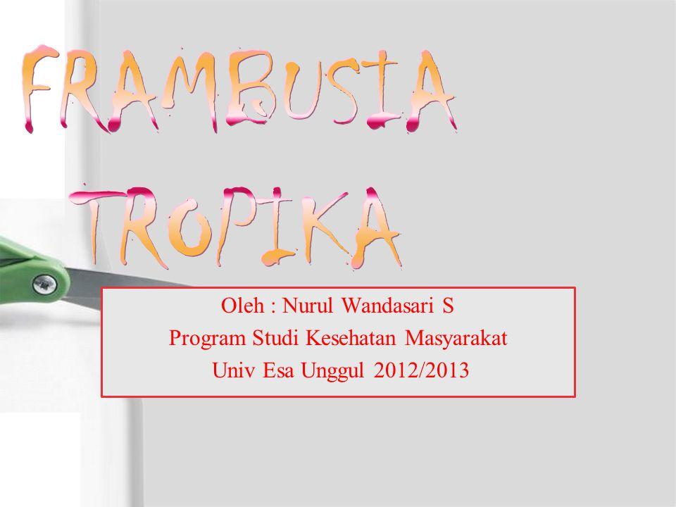 Oleh : Nurul Wandasari S Program Studi Kesehatan Masyarakat Univ Esa Unggul 2012/2013