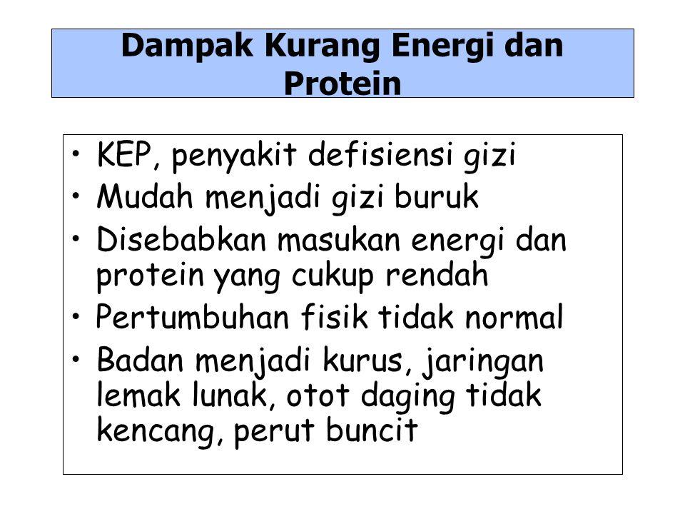 Dampak Kurang Energi dan Protein KEP, penyakit defisiensi gizi Mudah menjadi gizi buruk Disebabkan masukan energi dan protein yang cukup rendah Pertum
