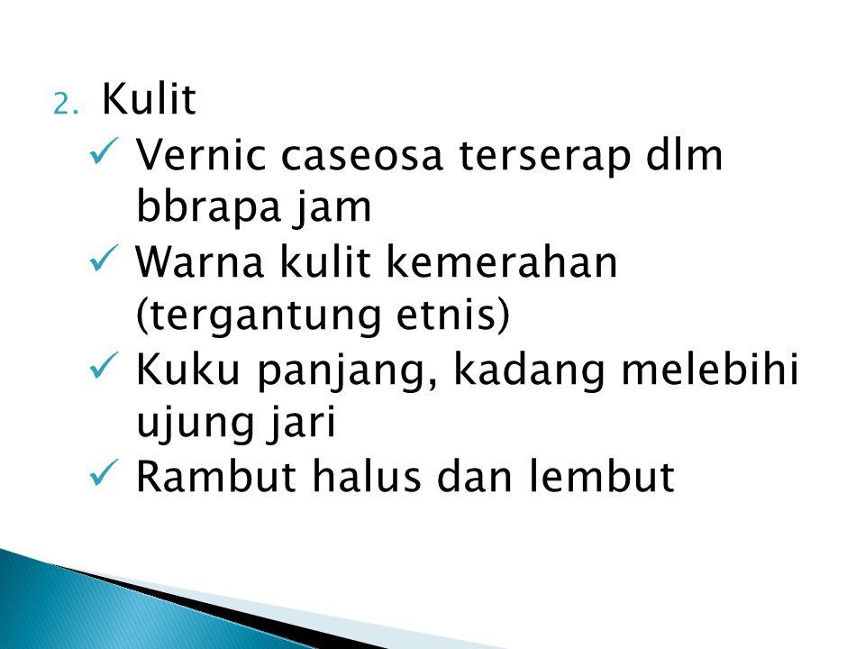 2. Kulit Vernic caseosa terserap dlm bbrapa jam Warna kulit kemerahan (tergantung etnis) Kuku panjang, kadang melebihi ujung jari Rambut halus dan lem