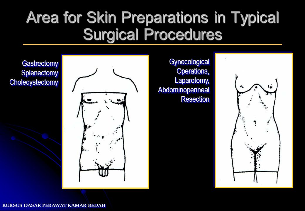 KURSUS DASAR PERAWAT KAMAR BEDAH Area for Skin Preparations in Typical Surgical Procedures GynecologicalOperations,Laparotomy,AbdominoperinealResectio