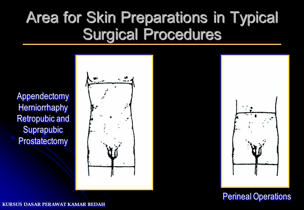 KURSUS DASAR PERAWAT KAMAR BEDAH Area for Skin Preparations in Typical Surgical Procedures Perineal Operations AppendectomyHerniorrhaphy Retropubic an
