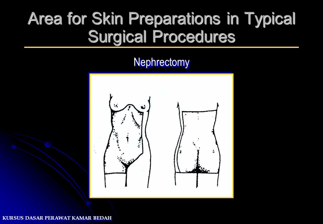KURSUS DASAR PERAWAT KAMAR BEDAH Area for Skin Preparations in Typical Surgical Procedures NephrectomyNephrectomy