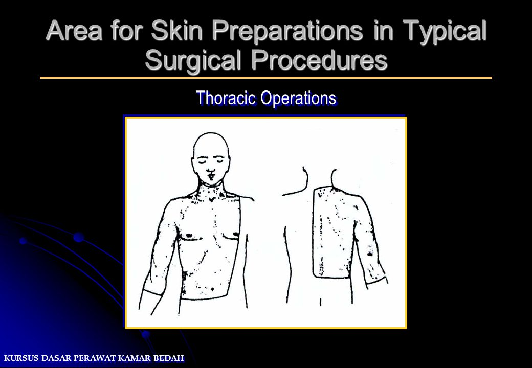 KURSUS DASAR PERAWAT KAMAR BEDAH Area for Skin Preparations in Typical Surgical Procedures Thoracic Operations
