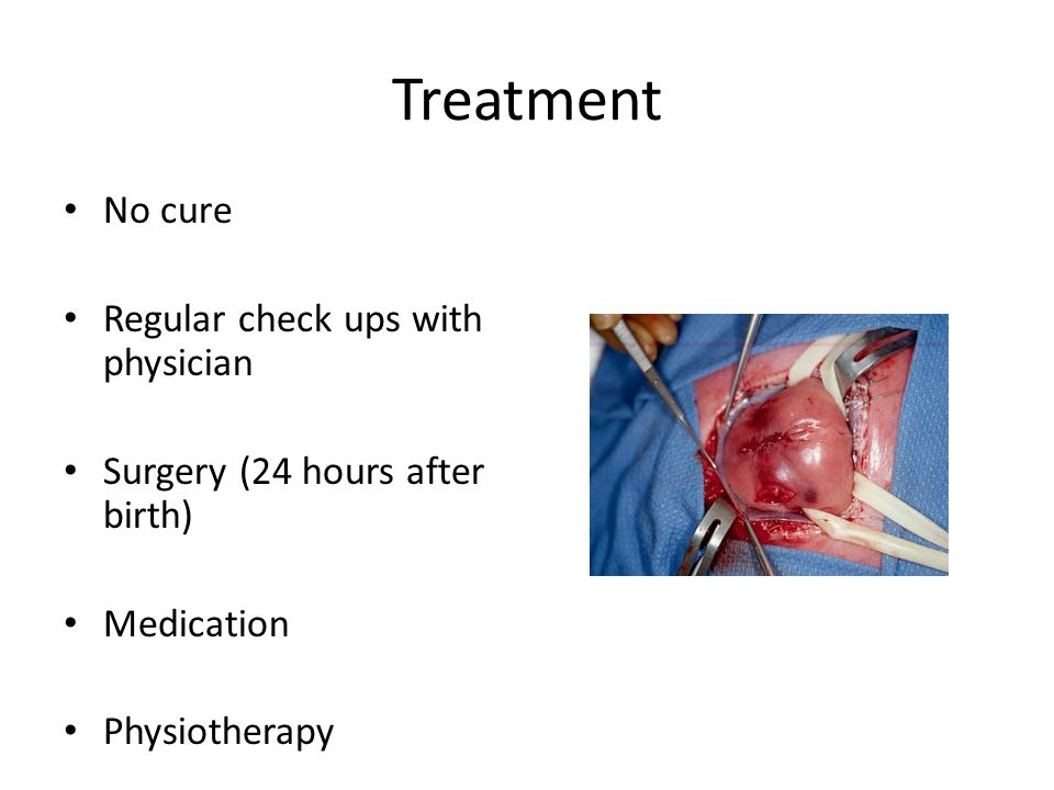 Treatment No cure Regular check ups with physician Surgery (24 hours after birth) Medication Physiotherapy