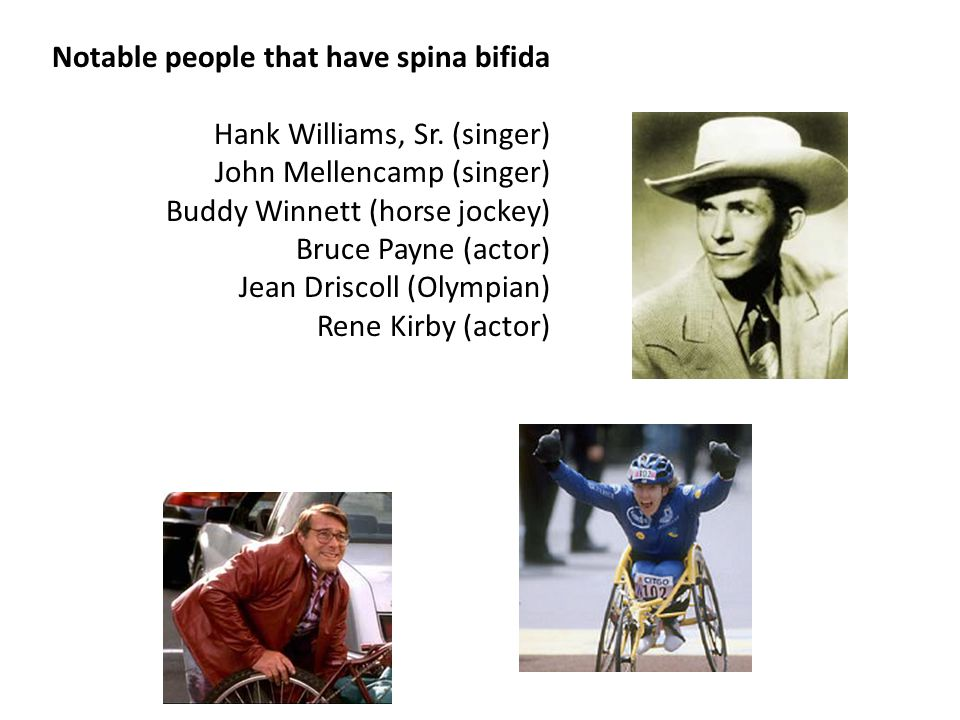 Notable people that have spina bifida Hank Williams, Sr.