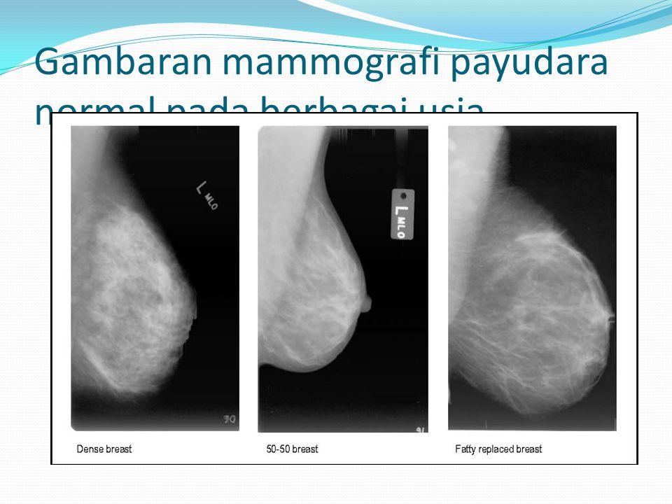 Gambaran mammografi payudara normal pada berbagai usia