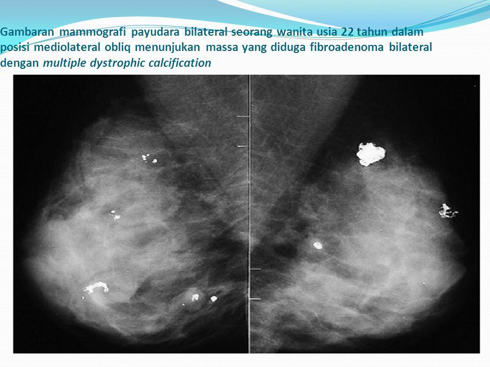 Gambaran mammografi payudara bilateral seorang wanita usia 22 tahun dalam posisi mediolateral obliq menunjukan massa yang diduga fibroadenoma bilatera