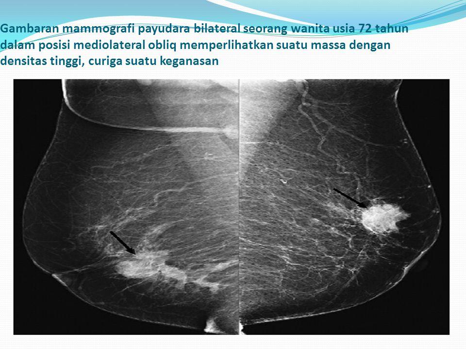 Gambaran mammografi payudara bilateral seorang wanita usia 72 tahun dalam posisi mediolateral obliq memperlihatkan suatu massa dengan densitas tinggi,