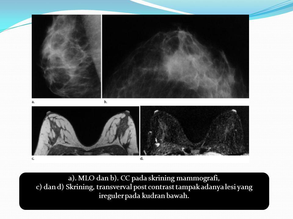 a). MLO dan b). CC pada skrining mammografi, c) dan d) Skrining, transverval post contrast tampak adanya lesi yang ireguler pada kudran bawah.