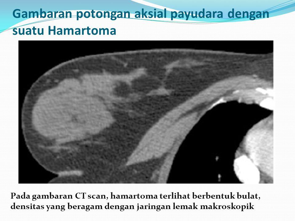 Gambaran potongan aksial payudara dengan suatu Hamartoma Pada gambaran CT scan, hamartoma terlihat berbentuk bulat, densitas yang beragam dengan jarin