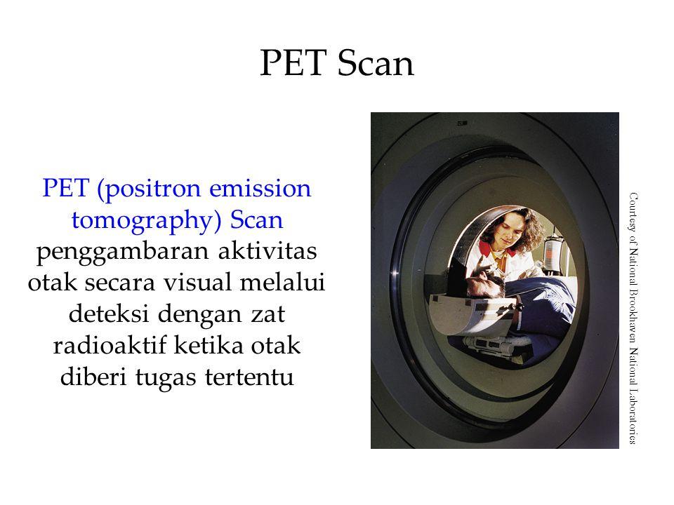 PET Scan PET (positron emission tomography) Scan penggambaran aktivitas otak secara visual melalui deteksi dengan zat radioaktif ketika otak diberi tugas tertentu Courtesy of National Brookhaven National Laboratories