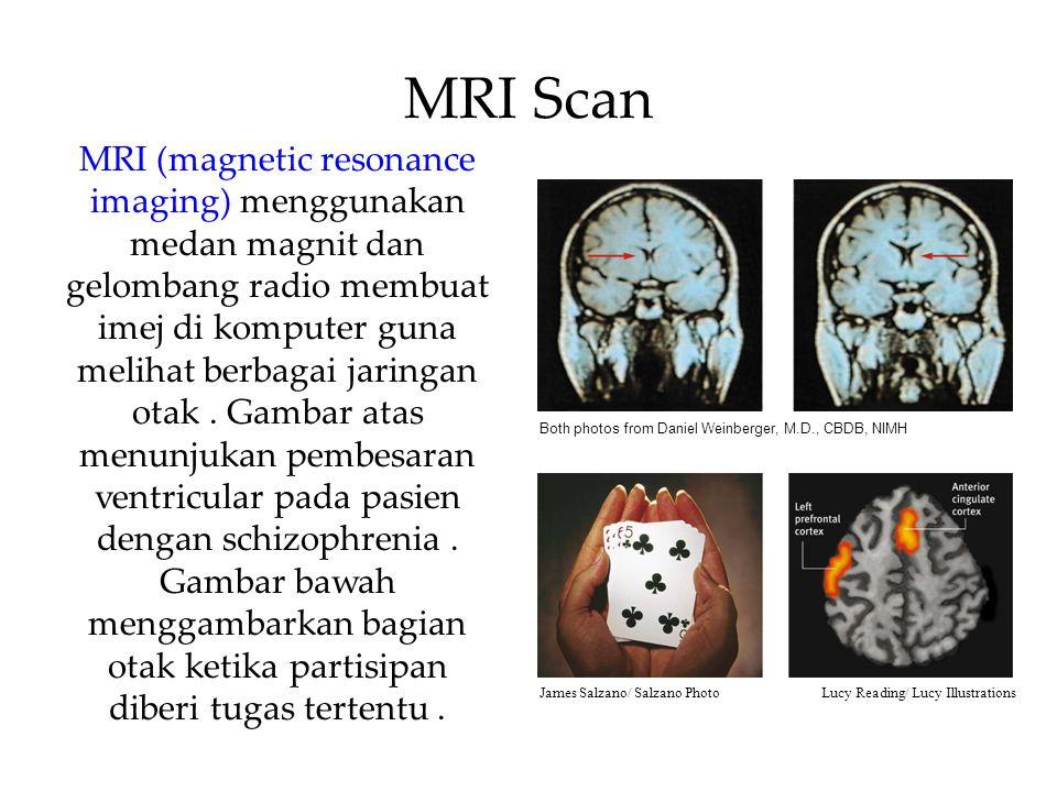 MRI Scan MRI (magnetic resonance imaging) menggunakan medan magnit dan gelombang radio membuat imej di komputer guna melihat berbagai jaringan otak.