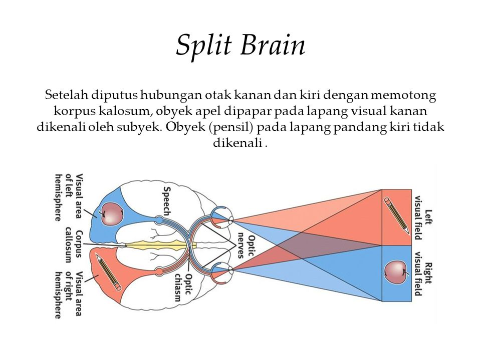 Split Brain Setelah diputus hubungan otak kanan dan kiri dengan memotong korpus kalosum, obyek apel dipapar pada lapang visual kanan dikenali oleh subyek.