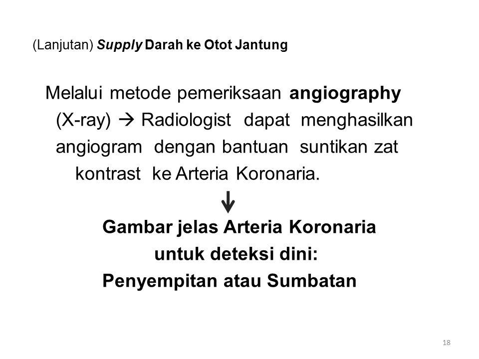(Lanjutan) Supply Darah ke Otot Jantung Melalui metode pemeriksaan angiography (X-ray)  Radiologist dapat menghasilkan angiogram dengan bantuan suntikan zat kontrast ke Arteria Koronaria.