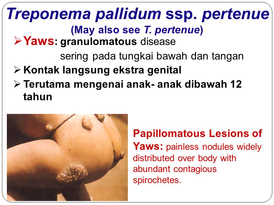 Treponema pallidum ssp. pertenue (May also see T. pertenue) Papillomatous Lesions of Yaws: painless nodules widely distributed over body with abundant