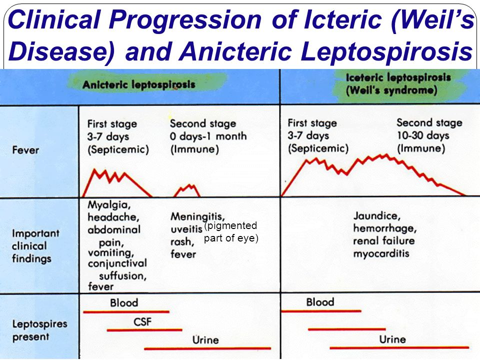 Clinical Progression of Icteric (Weil's Disease) and Anicteric Leptospirosis (pigmented part of eye)