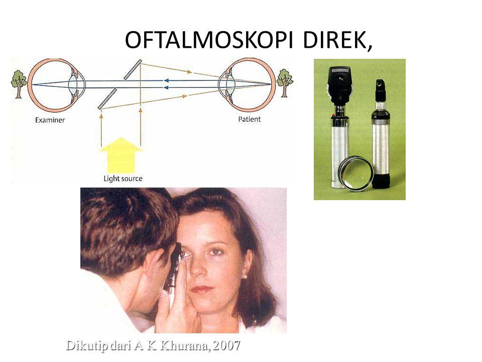 OFTALMOSKOPI DIREK, Dikutip dari A K Khurana, 2007