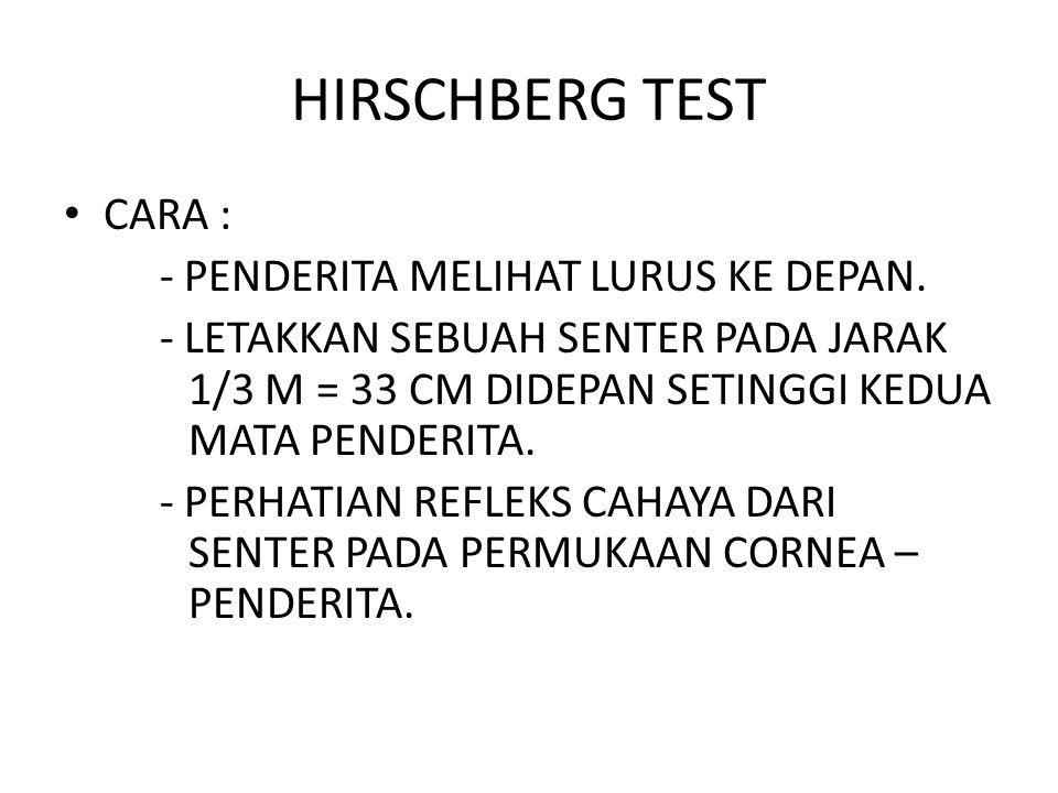 HIRSCHBERG TEST CARA : - PENDERITA MELIHAT LURUS KE DEPAN.