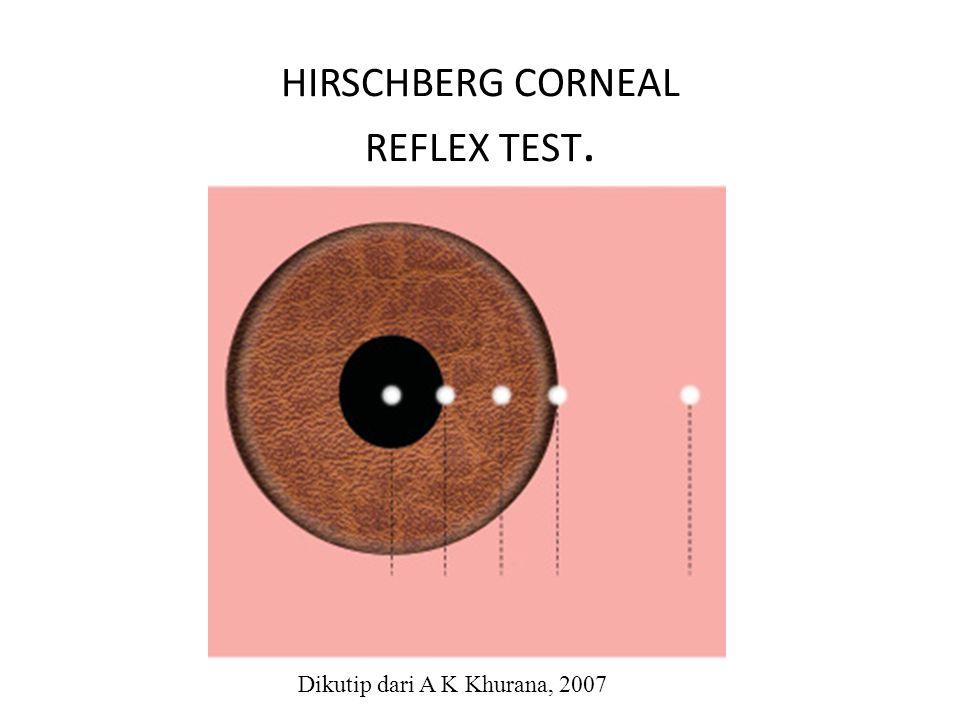 HIRSCHBERG CORNEAL REFLEX TEST. Dikutip dari A K Khurana, 2007