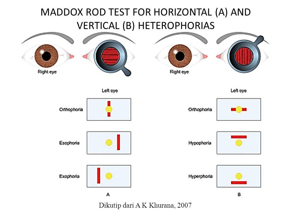 MADDOX ROD TEST FOR HORIZONTAL (A) AND VERTICAL (B) HETEROPHORIAS Dikutip dari A K Khurana, 2007