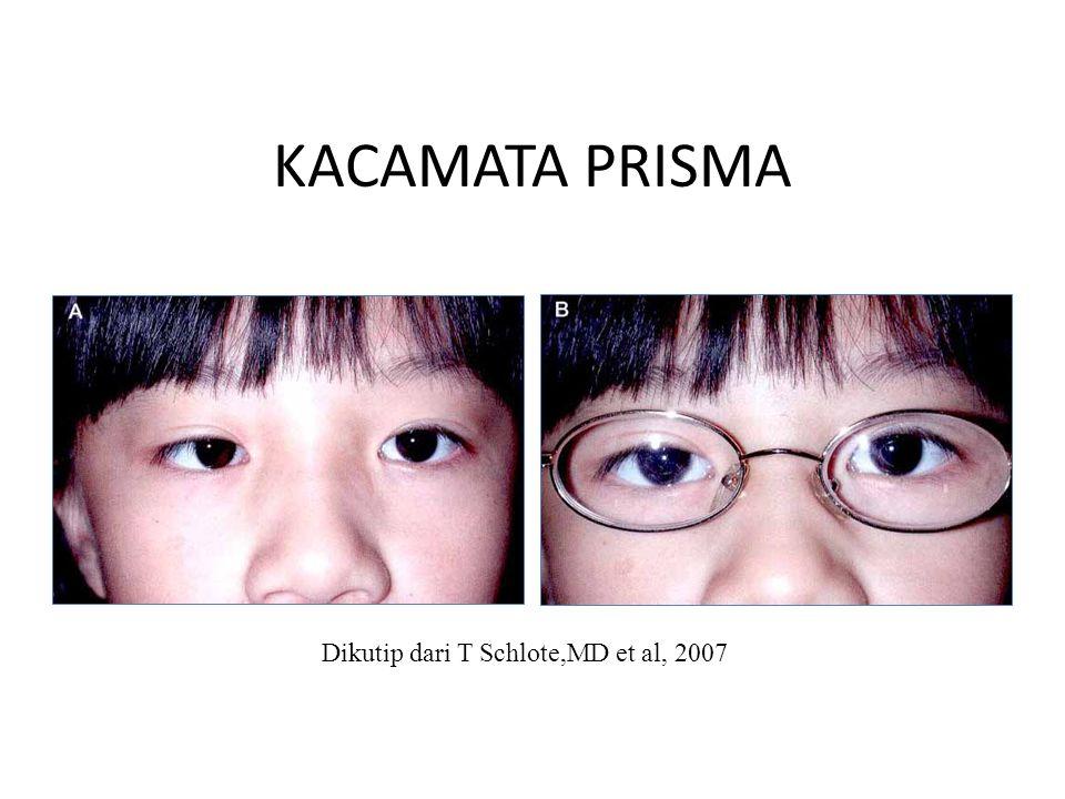 KACAMATA PRISMA Dikutip dari T Schlote,MD et al, 2007