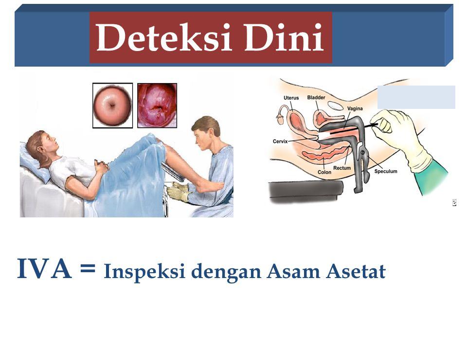 IVA = Inspeksi dengan Asam Asetat Deteksi Dini