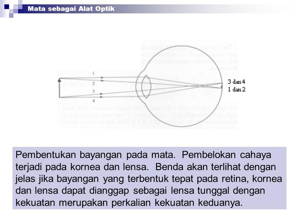 Pembentukan bayangan pada mata. Pembelokan cahaya terjadi pada kornea dan lensa. Benda akan terlihat dengan jelas jika bayangan yang terbentuk tepat p