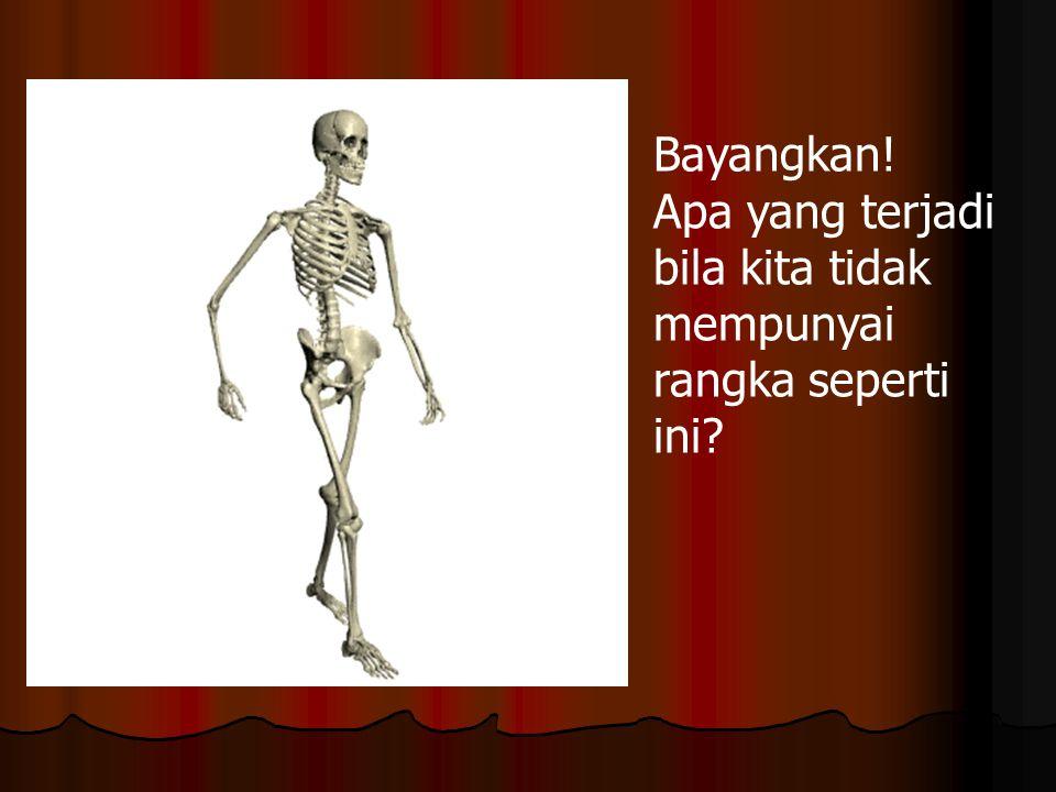 Kelainan pada sistem Gerak Artritis adalah penyakit sendi.
