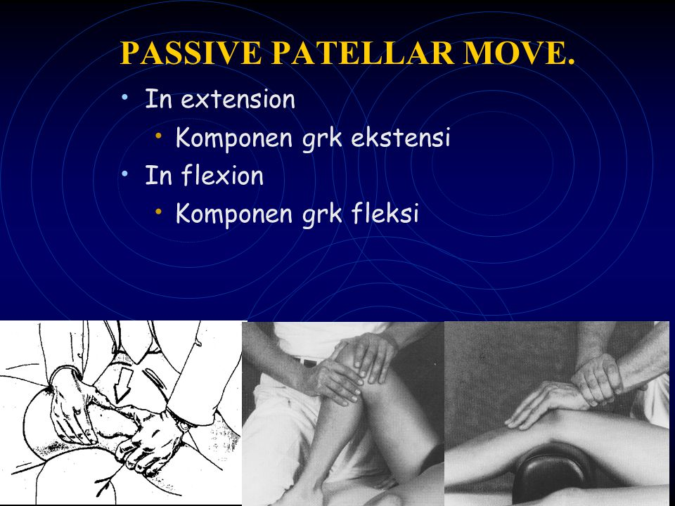 PASSIVE PATELLAR MOVE. In extension Komponen grk ekstensi In flexion Komponen grk fleksi