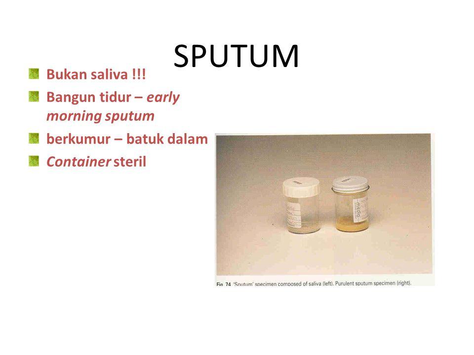Cara pengumpulan spesimen urine 1.