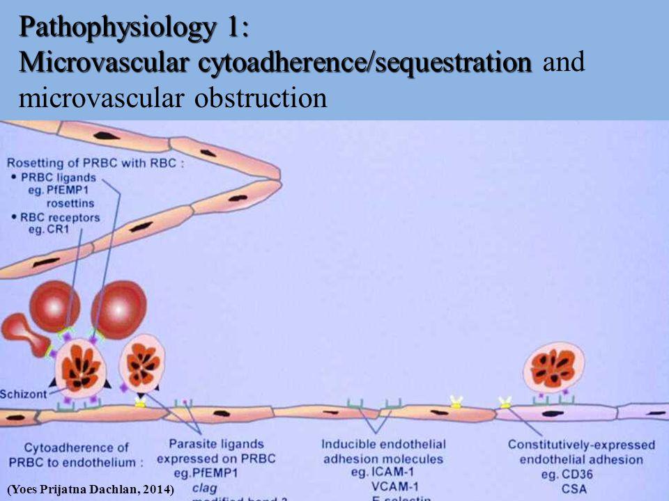Pathophysiology 1: Microvascular cytoadherence/sequestration Pathophysiology 1: Microvascular cytoadherence/sequestration and microvascular obstructio
