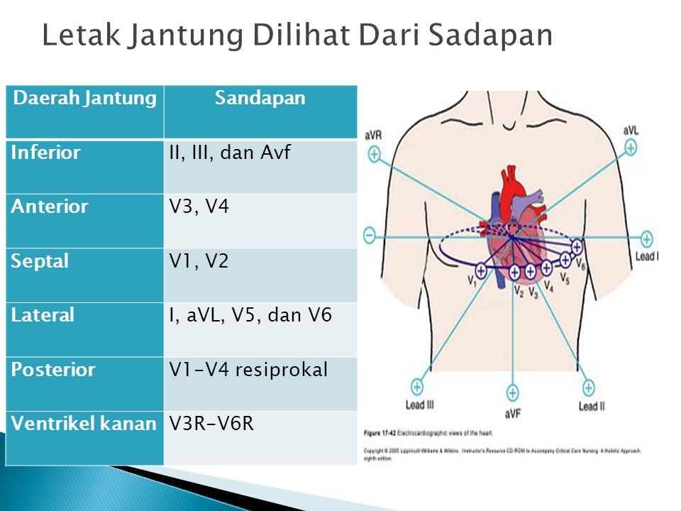 Daerah JantungSandapan InferiorII, III, dan Avf AnteriorV3, V4 SeptalV1, V2 LateralI, aVL, V5, dan V6 PosteriorV1-V4 resiprokal Ventrikel kananV3R-V6R