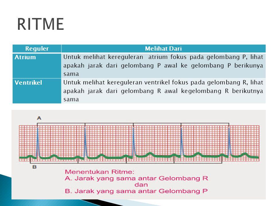 RegulerMelihat Dari Atrium Untuk melihat kereguleran atrium fokus pada gelombang P, lihat apakah jarak dari gelombang P awal ke gelombang P berikunya