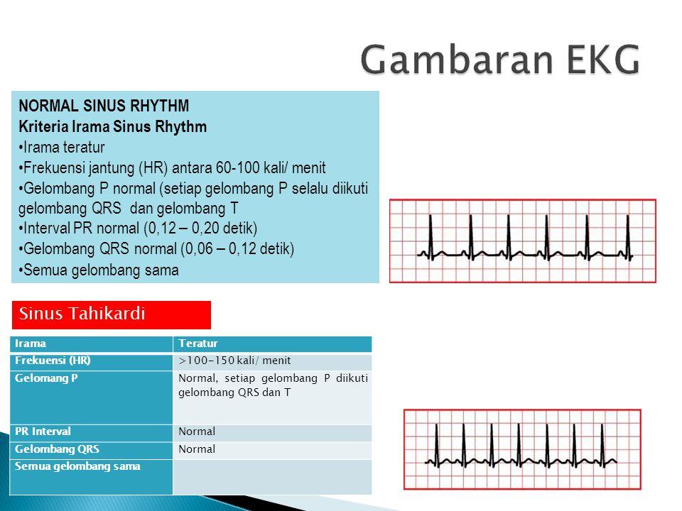 NORMAL SINUS RHYTHM Kriteria Irama Sinus Rhythm Irama teratur Frekuensi jantung (HR) antara 60-100 kali/ menit Gelombang P normal (setiap gelombang P