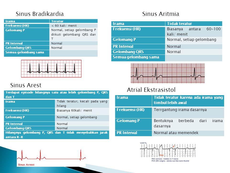 Sinus Bradikardia IramaTeratur Frekuensi (HR)< 60 kali/ menit Gelomang P Normal, setiap gelombang P diikuti gelombang QRS dan T PR IntervalNormal Gelo