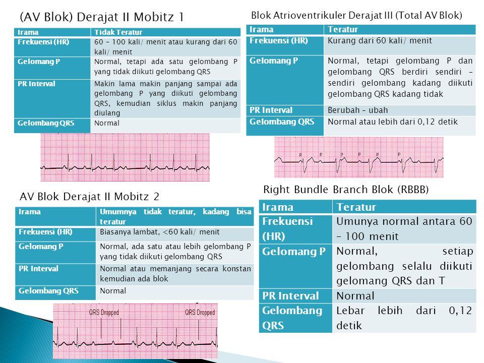 (AV Blok) Derajat II Mobitz 1 IramaTidak Teratur Frekuensi (HR) 60 – 100 kali/ menit atau kurang dari 60 kali/ menit Gelomang P Normal, tetapi ada sat