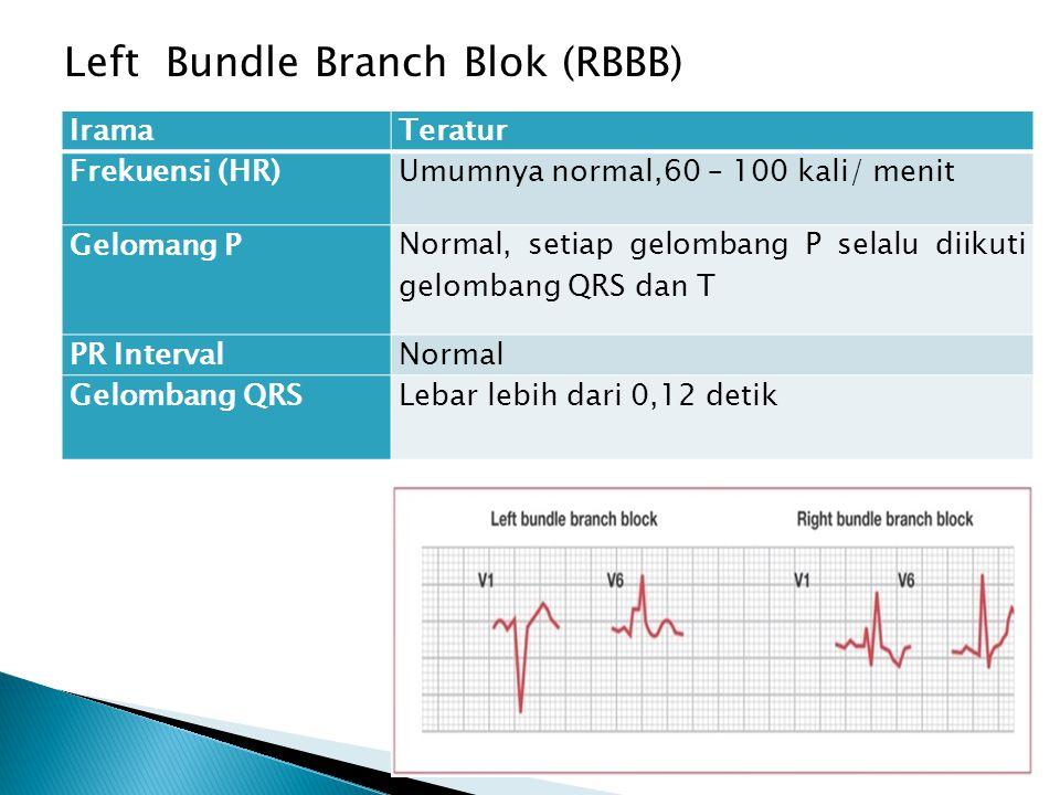 Left Bundle Branch Blok (RBBB) IramaTeratur Frekuensi (HR)Umumnya normal,60 – 100 kali/ menit Gelomang P Normal, setiap gelombang P selalu diikuti gel