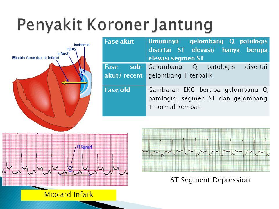 Fase akut Umumnya gelombang Q patologis disertai ST elevasi/ hanya berupa elevasi segmen ST Fase sub- akut/ recent Gelombang Q patologis disertai gelo