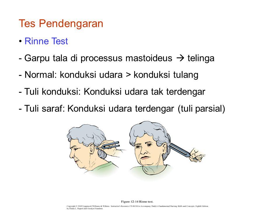 Tes Pendengaran Rinne Test - Garpu tala di processus mastoideus  telinga - Normal: konduksi udara > konduksi tulang - Tuli konduksi: Konduksi udara tak terdengar - Tuli saraf: Konduksi udara terdengar (tuli parsial)