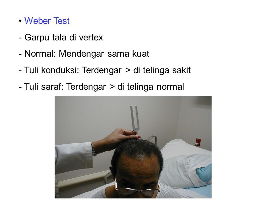 Weber Test - Garpu tala di vertex - Normal: Mendengar sama kuat - Tuli konduksi: Terdengar > di telinga sakit - Tuli saraf: Terdengar > di telinga nor