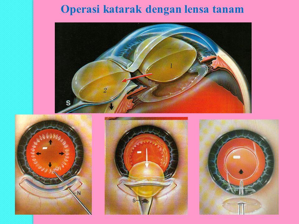 Operasi katarak dengan lensa tanam