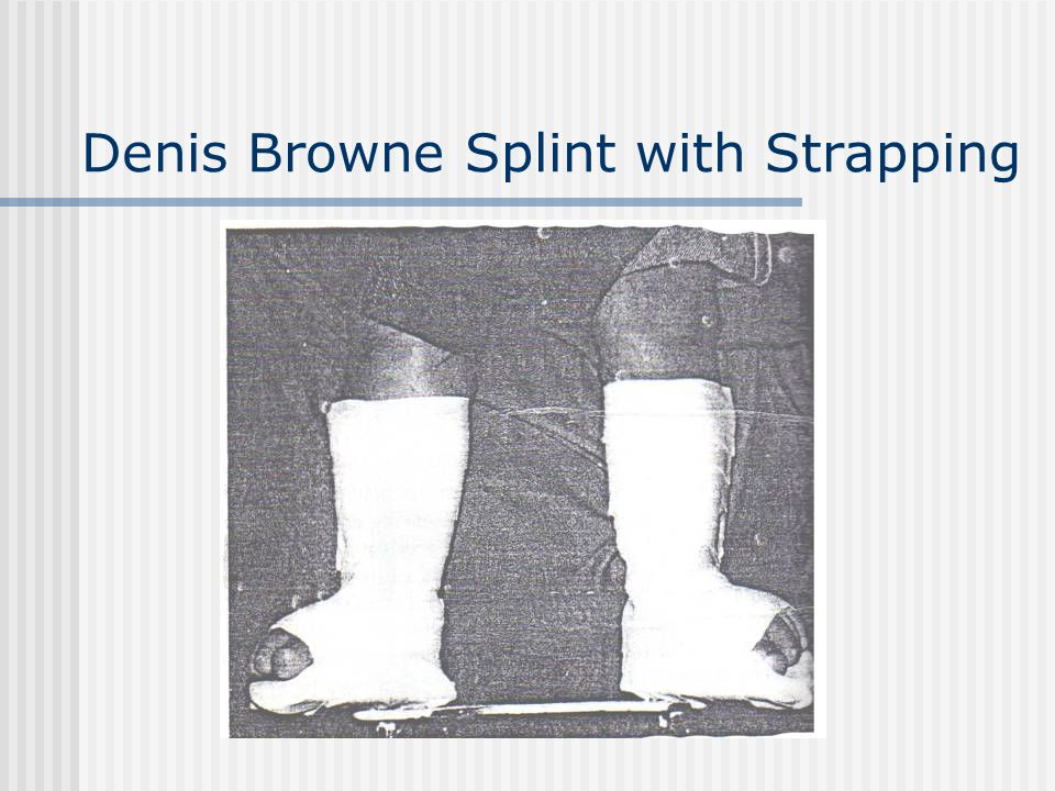 Denis Browne Splint with Strapping