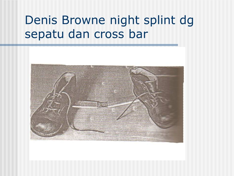 Denis Browne night splint dg sepatu dan cross bar
